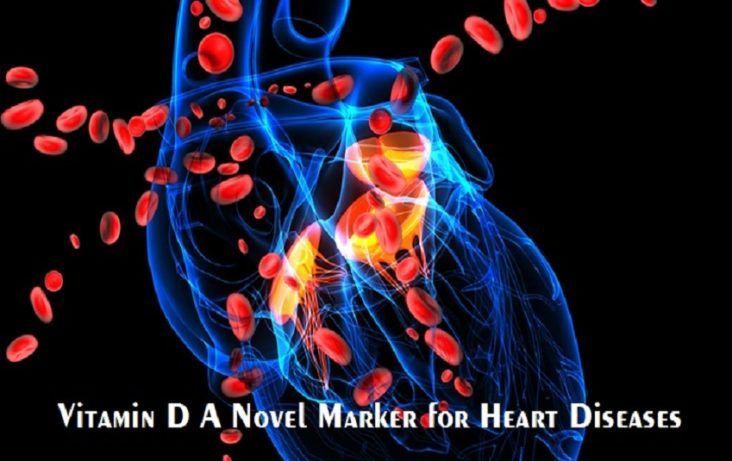 Curbing Vitamin D Levels Pose the Liability of Heart Disease