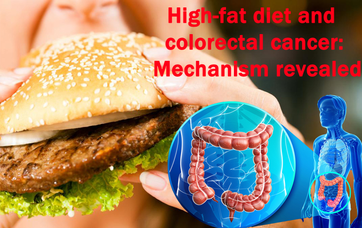 an analysis of the definition of colon cancer in the medical research of the united states The not-for-profit organization cancer research uk  harvard medical school, united states  in our analysis, a 58% greater risk of colon cancer was.