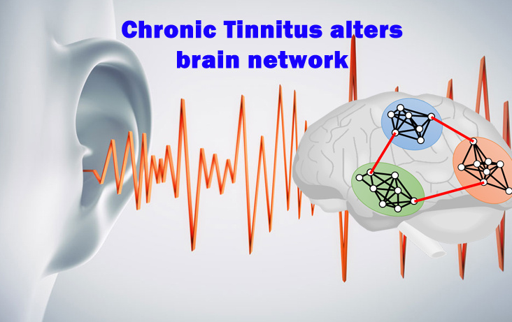 Chronic Tinnitus alters brain network
