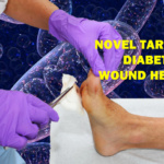 Novel Target on Diabetic Wound Healing