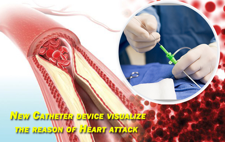 New Catheter device visualize the reason of Heart attack