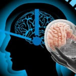 Brain Dysfunction Linked to Disturbance in Circadian Rhythm