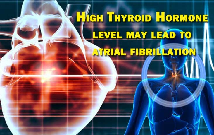 High Thyroid Hormone level may lead to atrial fibrillation